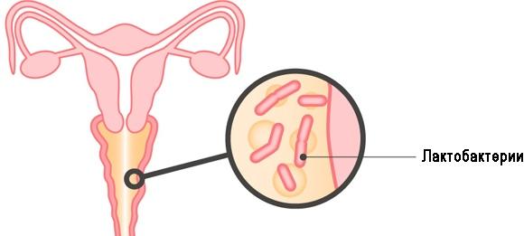 бактериальный вагиноз, бактериальный вагиноз лечение, как лечить бактериальный вагиноз