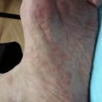 Иерсиниоз. Симптомы и лечение