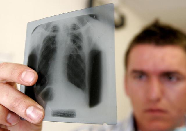 туберкулез у детей, симптомы туберкулеза у детей, признаки туберкулеза у детей
