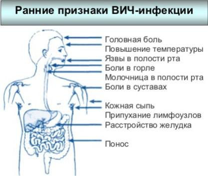 вич симптомы у детей фото
