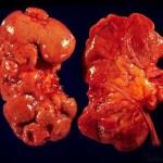 Пиелонефрит. Симптомы и лечение