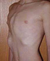 Какой купальник подойдет девушке с очень маленькой грудью