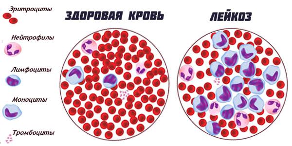 лейкоз у детей, лейкоз у детей симптомы, острый лейкоз у детей