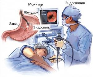 язвенная болезнь дифференциальная диагностика, дифференциальная диагностика язвенной болезни желудка,