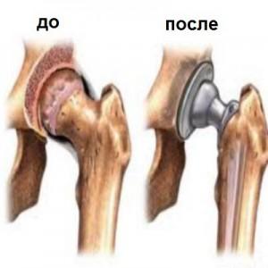 эндопротезирование суставов, эндопротезирование что это