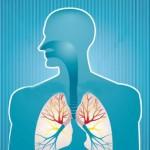 Лечение хронического бронхита