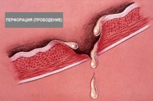 перфорация язвы, перфорация язвы симптомы, перфорация язвы желудка