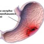 признаки малигнизации язвы, малигнизация язвы, малигнизация язвы желудка