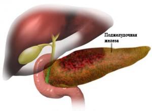 панкреатит лечение, средства лечения панкреатита, острый панкреатит лечение