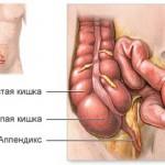 Аппендицит беременных и пожилых