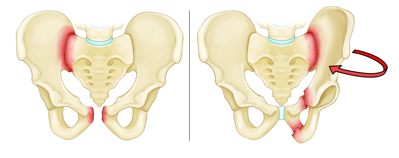 классификация переломов таза, кости таза, переломы костей таза классификация