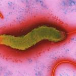 Кампилобактериоз