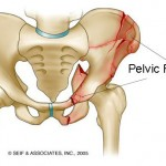 Классификация переломов таза