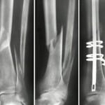 оперативное лечение перелома, оперативное лечение переломов костей, оперативный метод лечения переломов