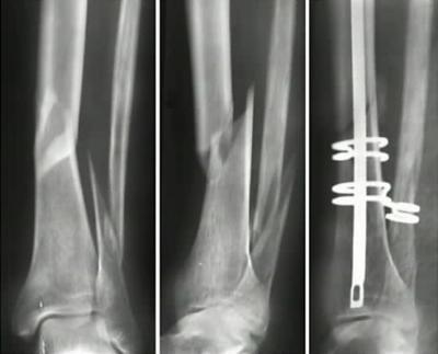 Кость после перелома крепче