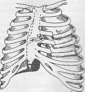 перелом ребер, перелом ребра лечение, перелом ребра симптомы