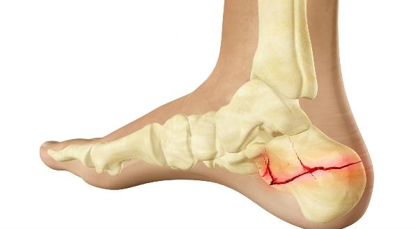 перелом пяточной кости, перелом пяточной кости лечение, перелом ...