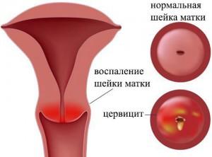 цервицит, хронический цервицит, цервицит лечение, цервицит симптомы