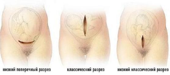разрез кесарево сечение