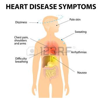 Ишемическая болезнь сердца, ишемическая болезнь сердца симптомы, ишемическая болезнь сердца лечение