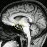 Синдром Шихана