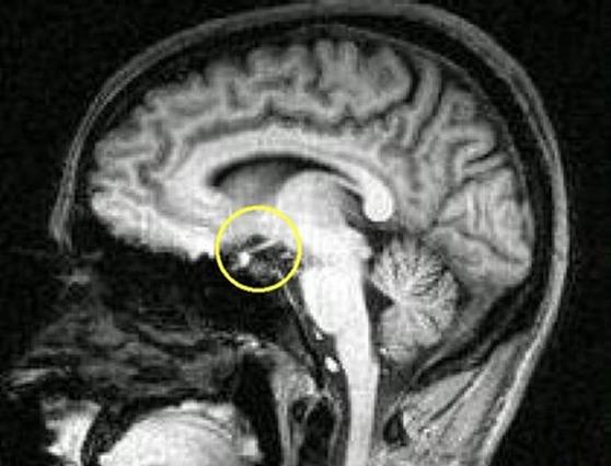синдром шихана, синдром шихана симптомы, синдром шихана лечение