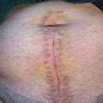 Просто о лечении перитонита