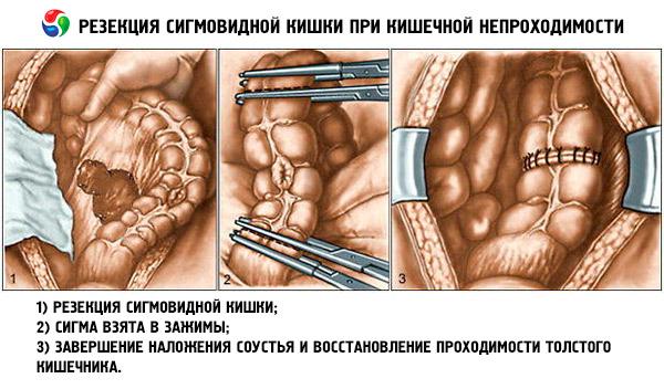 Непроходимость кишечника. Лечение