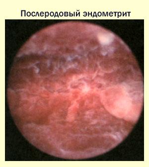 Послеродовый эндометрит