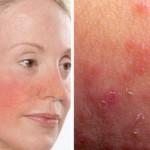 Признаки чувствительной кожи