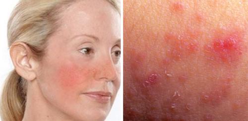 """""""Чувствительная кожа"""" на самом деле не медицинский диагноз - это распространенное обывательское выражение. Если вам интересно, чувствительна ли ваша кожа, задайте себе несколько вопросов:  Была ли у вас более 3-х раз реакция на продукт ухода за кожей, такое как мыло, лосьоны, кремы, шампуни и т.д.? Были ли у вас какие-либо реакции на с"""