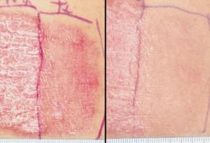 псориаз, псориаз лечение, псориаз фото, псориаз кожи, псориаз симптомы, псориаз причины