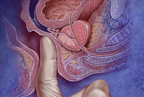 Может ли простата сдавливать кишечник