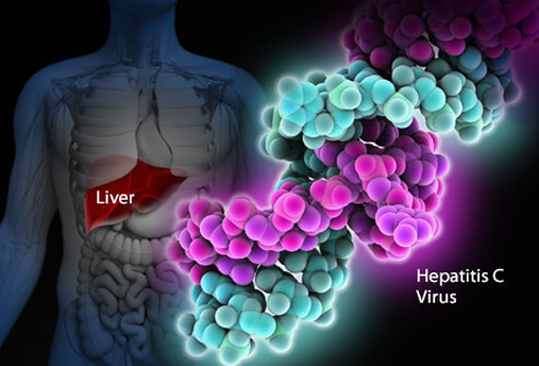 гепатит +с, гепатит +с лечение, прививка +от гепатита, гепатит +с +как передается, гепатит +с симптомы,