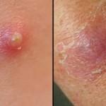 Фурункулы: причины, симптомы и лечение.