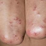 Целиакия: причины, симптомы и лечение
