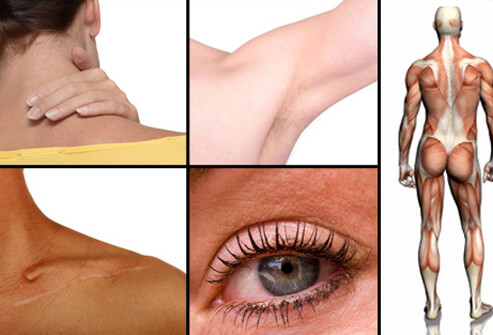 фурункул, гнойный фурункул, фурункул причины, как лечить фурункул, фурункул домашних условиях, фурункул лечение, фурункул фото, фурункулез лечение