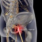 Боль в пояснице: симптомы, причины, лечение, облегчение.