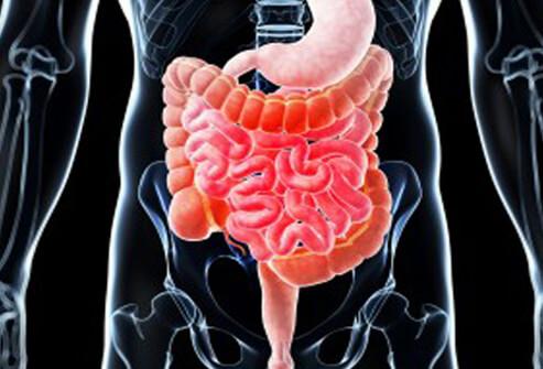 болезнь крона прогноз жизни, неспецифический язвенный колит, болезнь крона симптомы +и лечение. болезнь крона колит, болезнь крона, болезнь крона симптомы. болезнь кроне лечение,