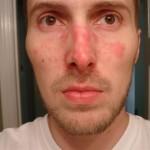 Себорейный дерматит: фото, причины, симптомы и лечение.