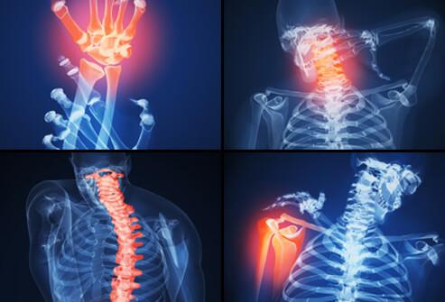ювенильный ревматоидный артрит, ревматоидный артрит симптомы +и лечение , суставы ревматоидный артрит.ревматоидный артрит, диагностика ревматоидного артрита, ревматоидный артрит лечение, ревматоидный артрит симптомы
