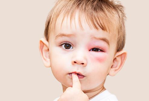 частые аллергены,распространенные аллергены детей, наиболее частые аллергены, распространенные аллергены, самые распространенные аллергены