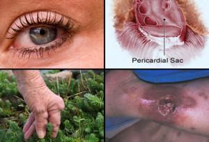 ювенильный ревматоидный артрит, ревматоидный артрит симптомы +и лечение, суставы ревматоидный артрит.ревматоидный артрит, диагностика ревматоидного артрита, ревматоидный артрит лечение, ревматоидный артрит симптомы