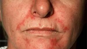 себорейный дерматит кожи, себорейный дерматит причины, себорея +на голове, себорейный дерматит +у детей, себорейный дерматит +на лице, себорейный дерматит фото, себорейный дерматит, себорейный дерматит лечение, себорейный дерматит волосистой,