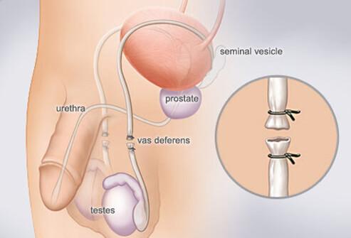 нежелательная беременность лучшее средство контрацепции, противозачаточные средства, средства контрацепции, современная контрацепция, методы контрацепции, методы контрацептивов, методы предохранения,