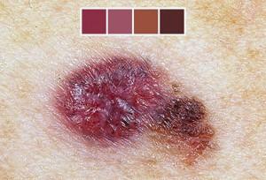 виды рака кожи, рак кожи фото, признаки рака кожи, как выглядит рак кожи, рак кожи, рак кожи начальная стадия фото, рак кожи симптомы