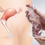Методы контрацепции. Часть 1