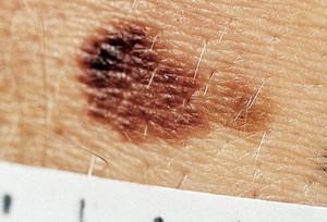, как правило, больше, чем карандаш ластик это один из менее надежных критериев для отличия меланомы.