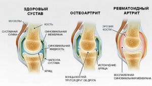 доа, остеоартроз, лечение остеоартрита суставов, сустав воспаление, остеоартрит, остеоартрит суставов, остеоартрит лечение, коленный остеоартрит