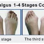 Hallux valgus: диагностика и лечение